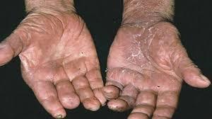 manos de un leproso