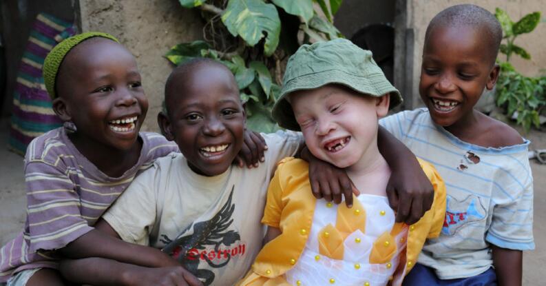 albinos-africa-2