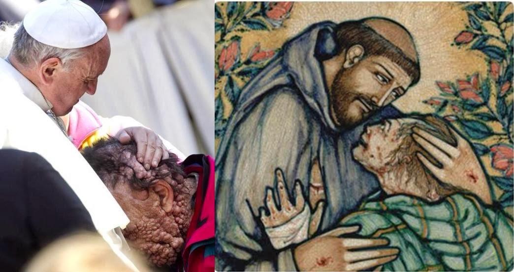 Francisco y el leproso