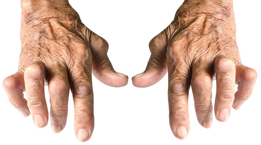 nuevo-descubrimiento-artritis-reumatoide