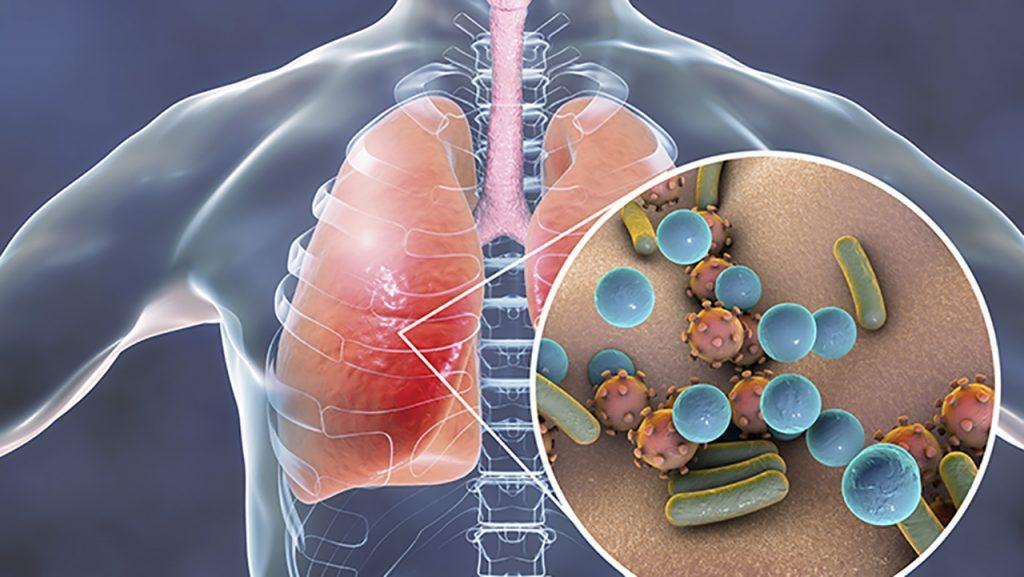 neumonia-pulmon-1024x577
