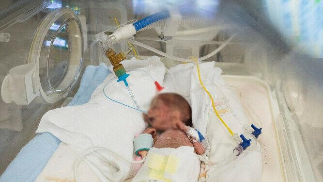 bebe-prematuro-incubadora_1352574854_99506855_667x375